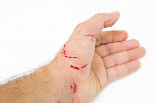 kedi tarafından tırmalanmış el