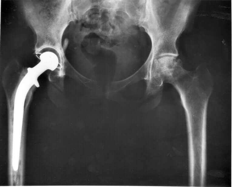 kedi displazisi röntgeni